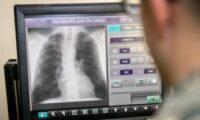 Una radiografía cuesta 62 kilómetros